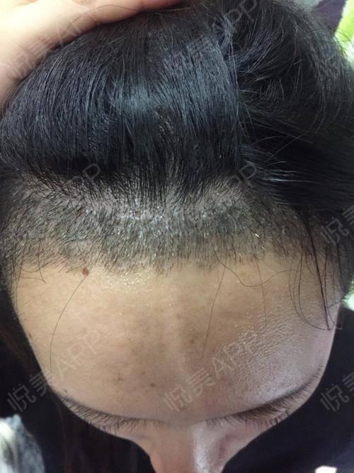 头发种植术后11天_治疗脱发术后11天_毛发移植术后11天_猪鼓励豆分享