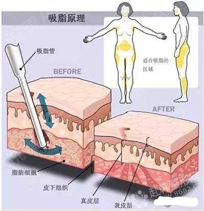 最后续的减肥方法--&n.瘦脸针省钱保养图片