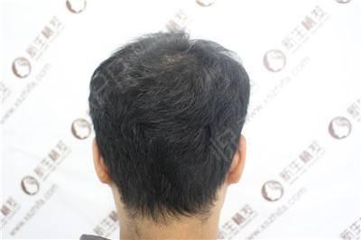 植发衔接对原生发造成很大损害