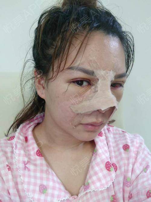 【上海奉浦鼻修复术后1天】今天是我最丑的时年级三作文v年级小学图片