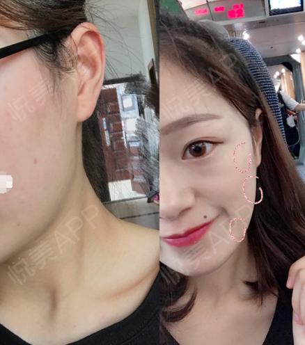 激光去雀斑术后54天_祛斑术后54天_皮肤美容美妆术后54天_悦mer