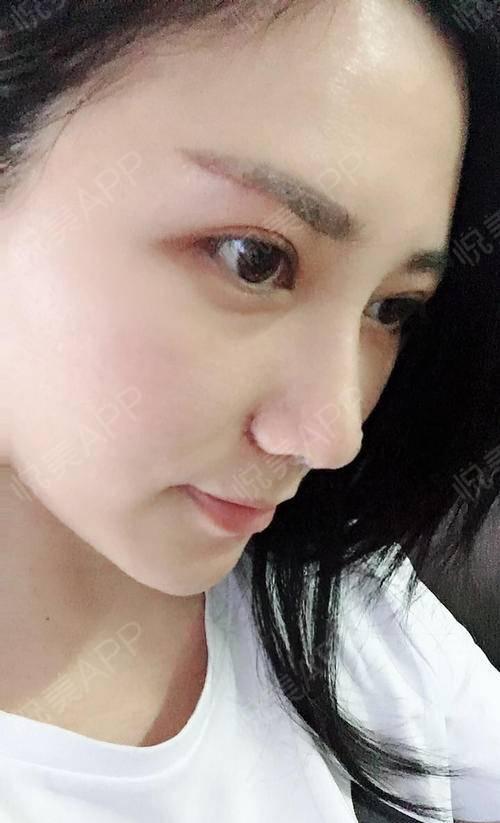 提眉术后14天,已经拆线了,伤口恢复的很好,疤痕刚好在眉下面,每天擦擦图片