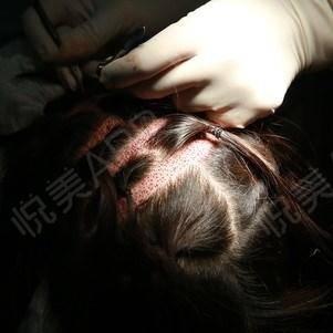 头发种植手术当天_治疗脱发手术当天_毛发移植手术当天_时间才是第