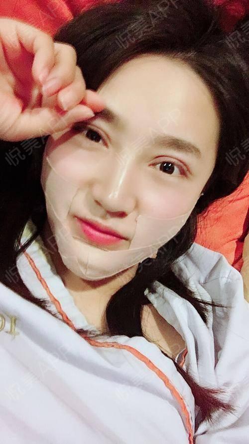 要是均匀一点,像韩国小姐姐那种有点肉肉的少女脸也还好,又可爱,又显