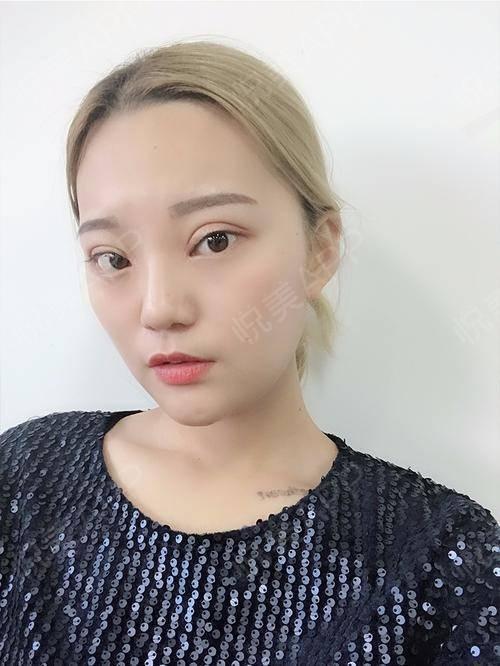 【上海华美李志海博士长曲线下颌角】