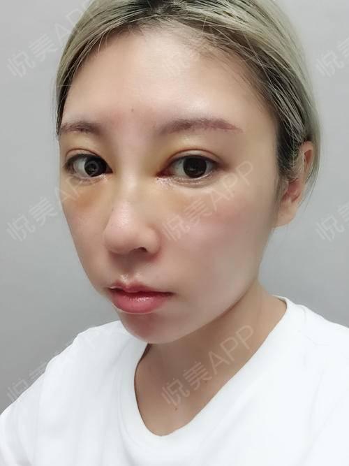 切眉提眉术后7天_眼周年轻化术后7天_鼻综合术后7天_隆鼻失败修复术后图片