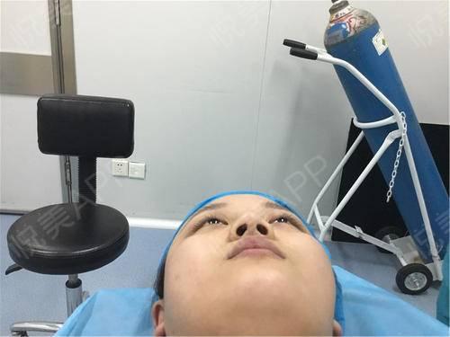 鼻综合手术_自体肋软骨隆鼻手术当天_鼻型矫正手术当天_鼻综合手术当天_隆鼻手术
