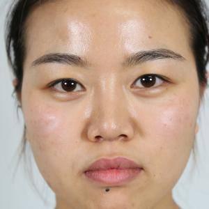 卡拉扬鼻综合整形+微创双眼皮