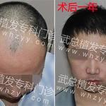 头顶脱发是什么原因男性脱发如何治疗?