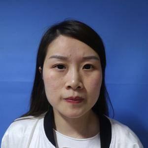 综合隆鼻(鼻梁、鼻头、鼻小柱、鼻尖)