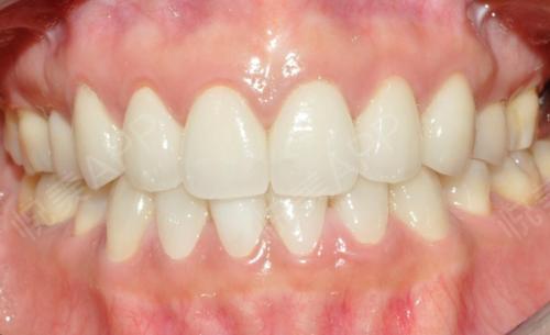 一直因为牙齿比较自卑,不喜欢笑的时间露出来牙齿,觉得自己的牙齿特别不好看有点像抽烟很久的情况,但是牙齿是从小就有这样的情...