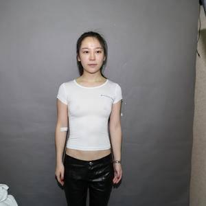 深圳阳光医院 假体隆胸