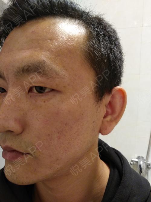 第三次治疗第十五天脸部皮肤的结痂都掉完了,刚开始皮肤呈现粉红色,大概4-5天就消失了,粉红色逐渐变浅,变得和正常肤色一样...