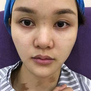 鼻综合,瘦脸针,玻尿酸填法令纹、额角