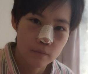 隆鼻修复案例