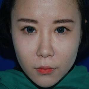 鼻部修复术