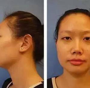 【整形案例】鼻翼缩小+溶脂瘦脸:消灭
