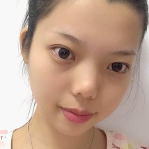 福州隆鼻整形 鼻综合手术