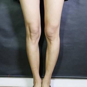 北京达美如艺o型腿矫正