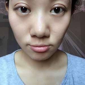 不远千里去重庆找双眼皮修复大师做手术