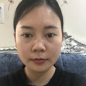 鼻综合#膨体#耳软骨垫鼻尖