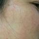 不知不觉40多天了,以前脸上总是看上去脏脏的,脸上斑点也很明显,经过皮秒治疗,改善了好多,皮肤都变白了...