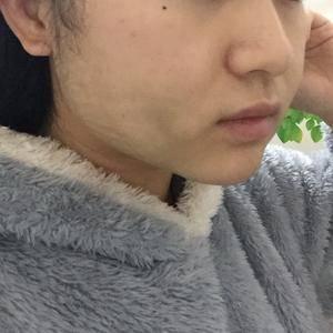 【西安健丽-面部吸脂】