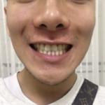 困扰很久的牙齿问题,视觉上可能没有很大的影响。可是之前两边7牙都因为蛀到...