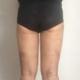 我大概1月初做的,做了好多个小时,先是让刘医生面诊,因为大腿都是脂肪,所以选择吸脂,总共吸了大概4L的...