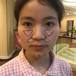 深圳蒳美迩医院自体脂肪填充