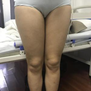 福州 大腿吸脂