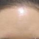 第一次除皱很有效果,已经过去快二个月了,额头没有了刚打完紧绷绷的感觉,现在皱纹仍然不明显,额头肌肉放...