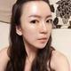 在北京京韩自体脂肪填充面部精雕跟宝宝们汇报一下,做完已经快2个月了,时间过得好快啊!双眼皮早就完全消...