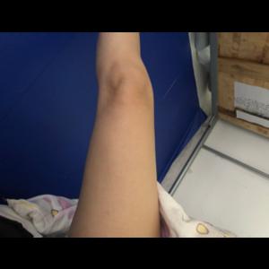 我要写一个真实的全面的大腿吸脂体验