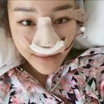 西安美莱达拉斯全鼻整形,半肋+银峰隆鼻今天是第3天啦,医生说我体质很好,所以恢复的比很多人都快。做完全麻后要打3天点滴的...