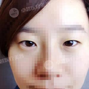 面部脂肪填充加双眼皮  少女感再现