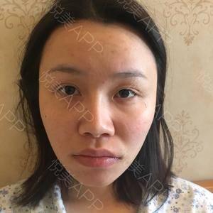 鼻综合修复整形
