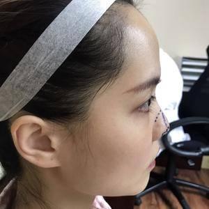 lameier鼻综合