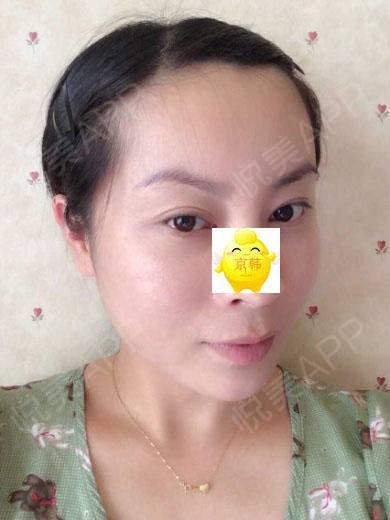 在北京京韩脂肪移植专科医院做完自体脂肪填充全颜面雕术后47天效果对比照片案例,面部的脂肪还是那样稳定饱满,一点都没有感觉...