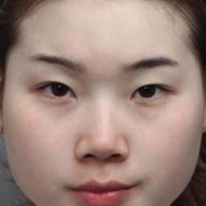 民航广州医院+海薇玻尿酸注射