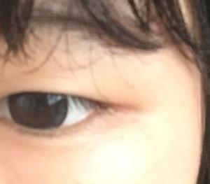 双眼皮日记