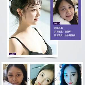 成都赵博士DR·Z双曲线元气美鼻新品 备受成都青睐