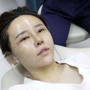 北京ap爱彼医疗美容-填充 眼鼻综合