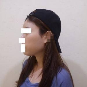 北京ap爱彼医疗美容-水光和瘦脸针