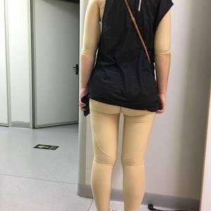 上臂吸脂手术