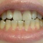 超声波洗牙已经一周了,牙齿真的白了很多,洗牙的过程还是蛮快的,有一些出血...
