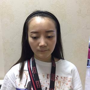 植发 发际线种植 头发加密 美人尖