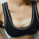 【广州利美康-自体脂肪丰胸 手术当天】说一下在利美康医疗美容医院做的自体脂肪丰胸的手术。说实...