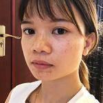 今天来广州天姿打了瘦脸针和水光针。这几天平台一直都有在搞活动,价格蛮实惠...