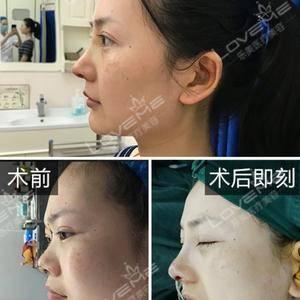 鼻中隔鼻综合案例分享